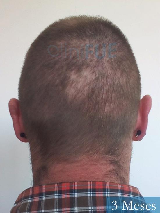 Guillermo-40-anos-islas baleares-trasplante-turquia- 3 meses 5