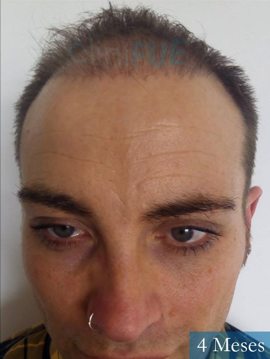 Guillermo-40-anos-islas baleares-trasplante-turquia- 4 meses