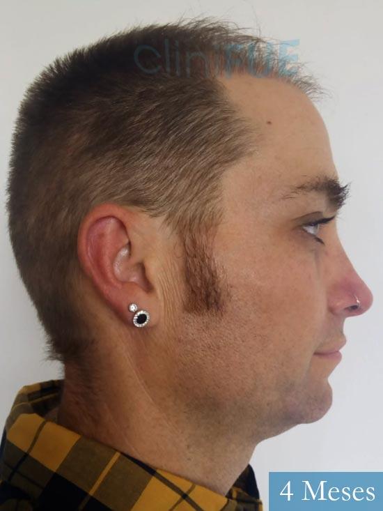 Guillermo-40-anos-islas baleares-trasplante-turquia- 4 meses 3