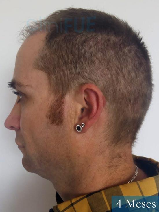 Guillermo-40-anos-islas baleares-trasplante-turquia- 4 meses 4