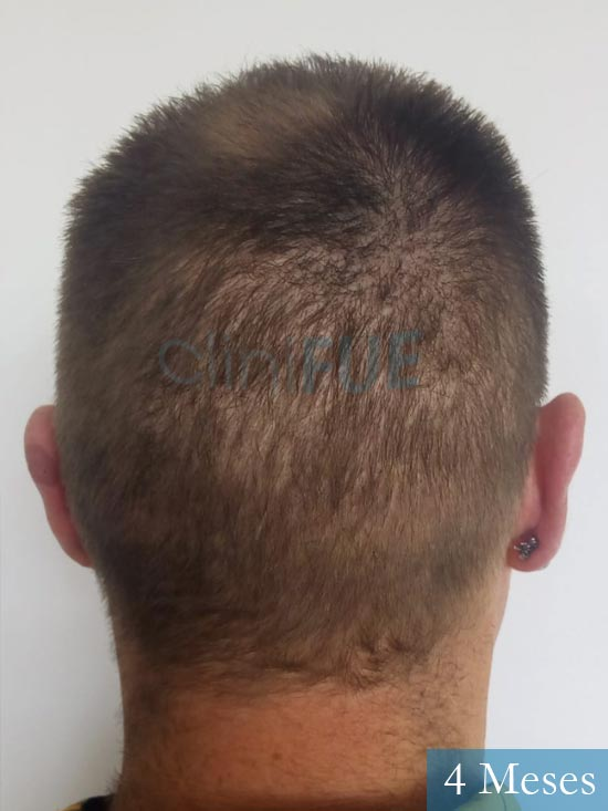 Guillermo-40-anos-islas baleares-trasplante-turquia- 4 meses 5