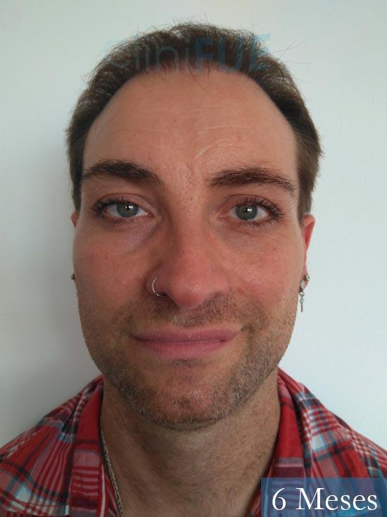 Guillermo-40-anos-islas baleares-trasplante-turquia- 6 meses