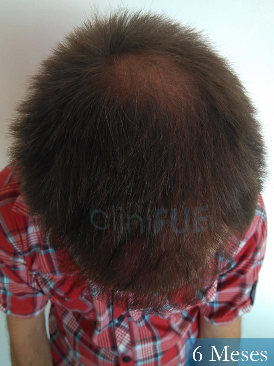 Guillermo-40-anos-islas baleares-trasplante-turquia- 6 meses 2