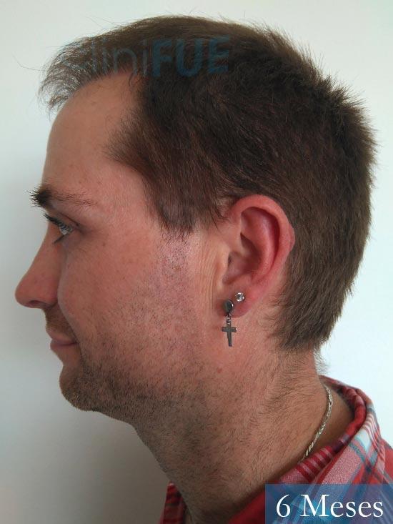 Guillermo-40-anos-islas baleares-trasplante-turquia- 6 meses 4