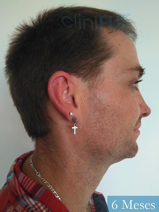 Guillermo-40-anos-islas baleares-trasplante-turquia- 6 meses 3