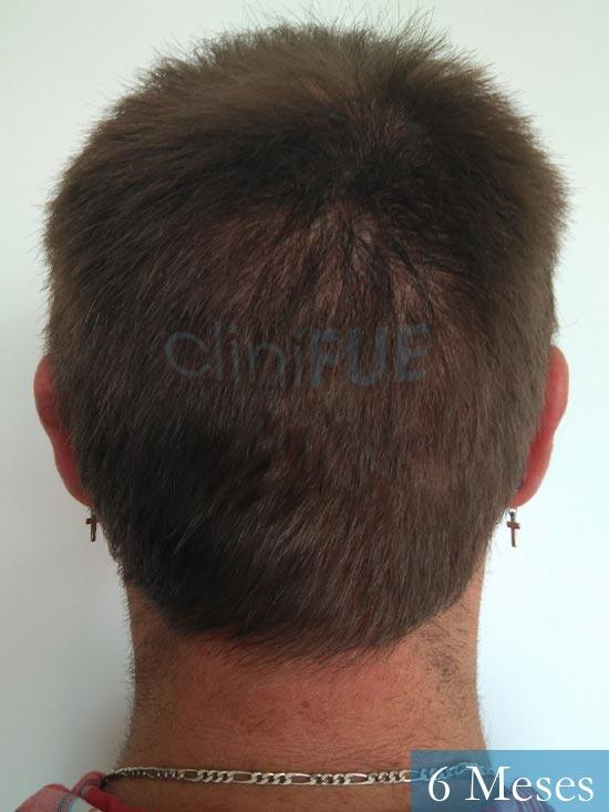 Guillermo-40-anos-islas baleares-trasplante-turquia- 6 meses 5