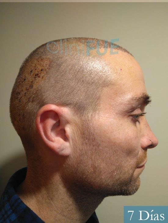 Guillermo-40-anos-islas baleares-trasplante-turquia- 7 dias 2