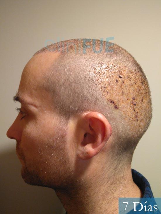 Guillermo-40-anos-islas baleares-trasplante-turquia- 7 dias 3