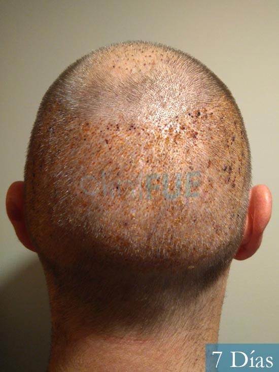 Guillermo-40-anos-islas baleares-trasplante-turquia- 7 dias 5