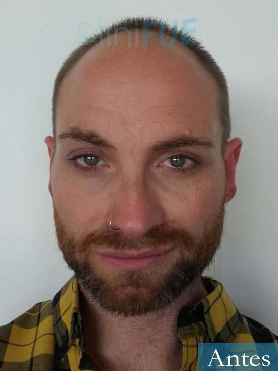 Guillermo-40-anos-islas baleares-trasplante-turquia-antes