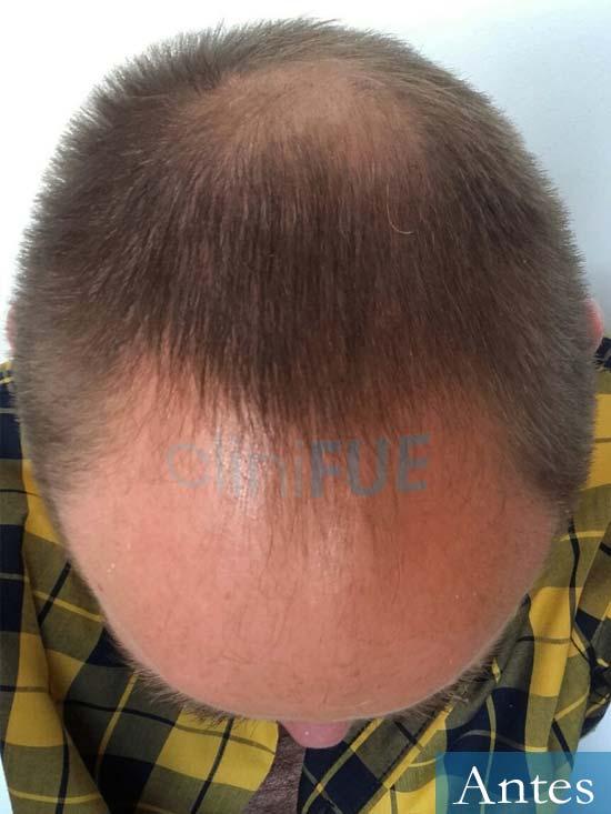 Guillermo-40-anos-islas baleares-trasplante-turquia-antes 3