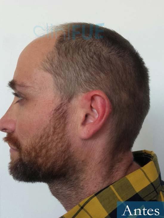 Guillermo-40-anos-islas baleares-trasplante-turquia-antes 5