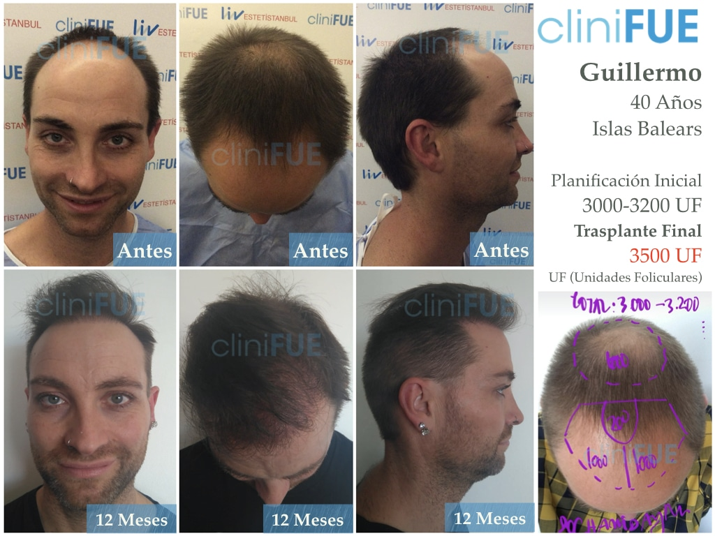Guillermo-40-anos-islas baleares-trasplante-turquia-
