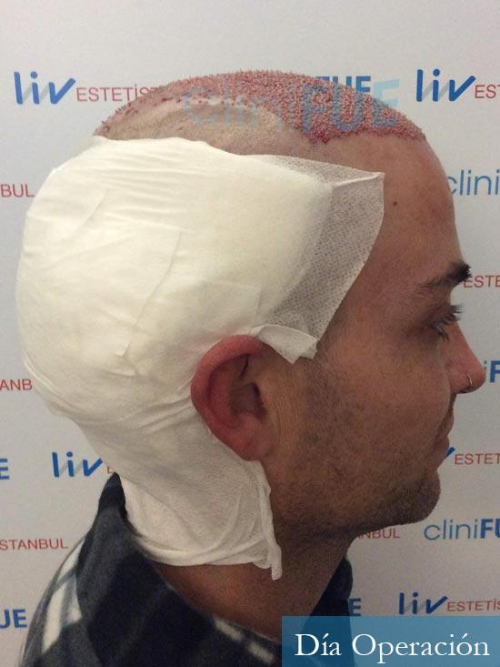 Guillermo-40-anos-islas baleares-trasplante-turquia-dia operacion- 3