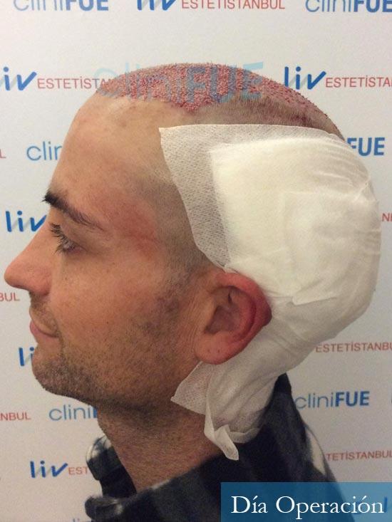 Guillermo-40-anos-islas baleares-trasplante-turquia-dia operacion- 5