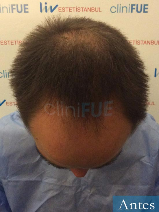 Guillermo-40-anos-islas baleares-trasplante-turquia-dia operacion- 2