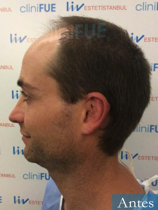 Guillermo-40-anos-islas baleares-trasplante-turquia-dia operacion- 4