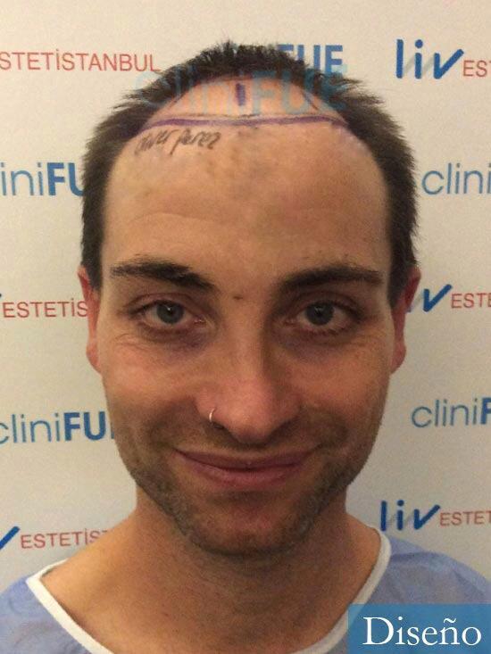 Guillermo-40-anos-islas baleares-trasplante-turquia-dia operacion- diseno