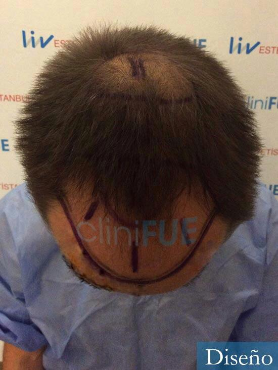 Guillermo-40-anos-islas baleares-trasplante-turquia-dia operacion- diseno 2