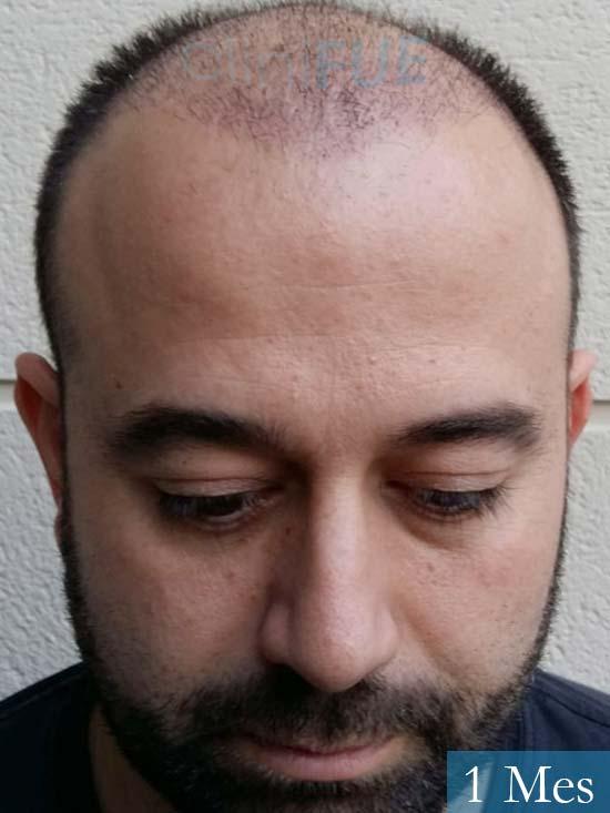 Javier-38-Guadalajara-trasplante-capilar-turquia 1 mes