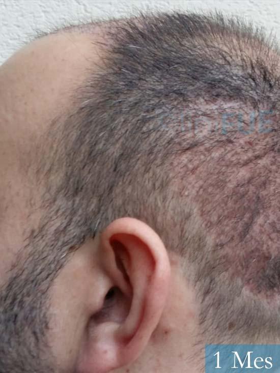 Javier-38-Guadalajara-trasplante-capilar-turquia 1 mes 3