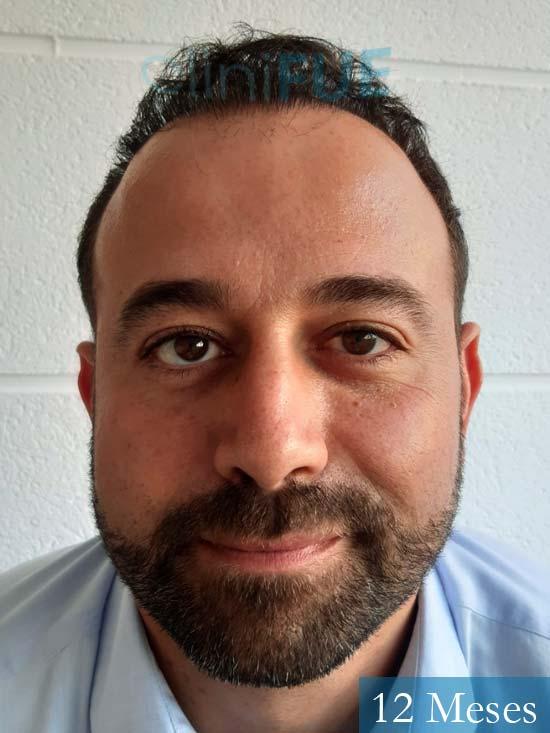 Javier-38-Guadalajara-trasplante-capilar-turquia 12 meses