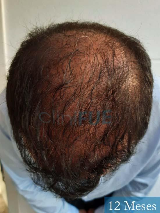 Javier-38-Guadalajara-trasplante-capilar-turquia 12 meses 2