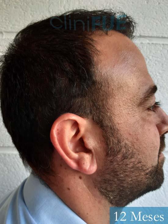 Javier-38-Guadalajara-trasplante-capilar-turquia 12 meses 3