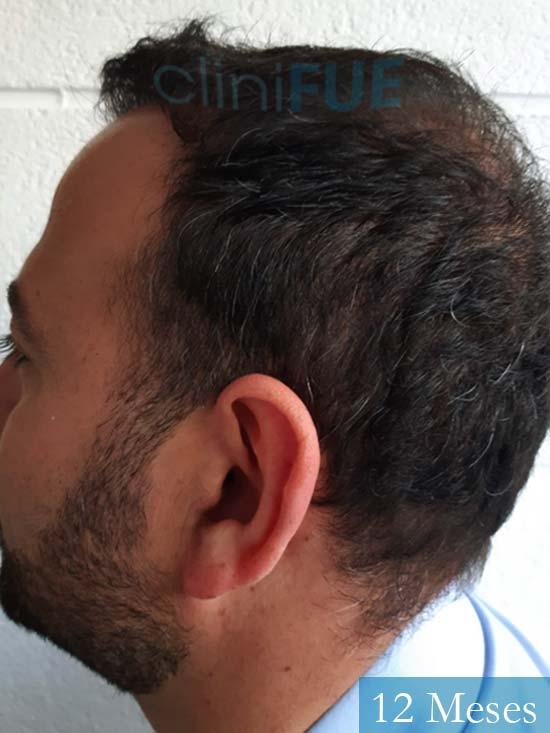 Javier-38-Guadalajara-trasplante-capilar-turquia 12 meses 5