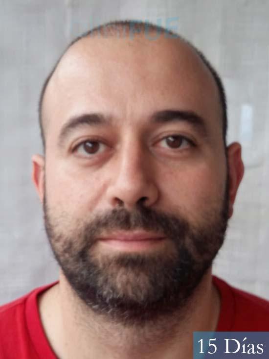 Javier-38-Guadalajara-trasplante-capilar-turquia 15 dias