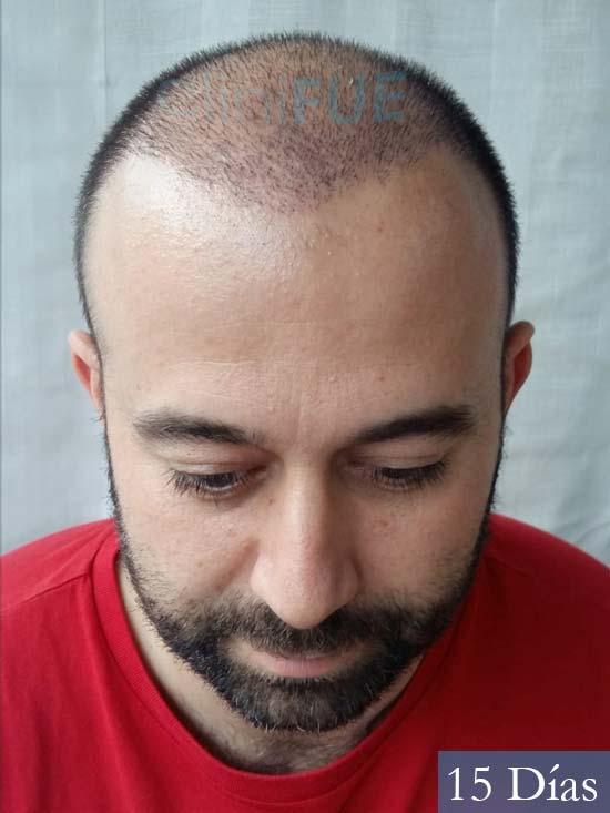 Javier-38-Guadalajara-trasplante-capilar-turquia 15 dias 2