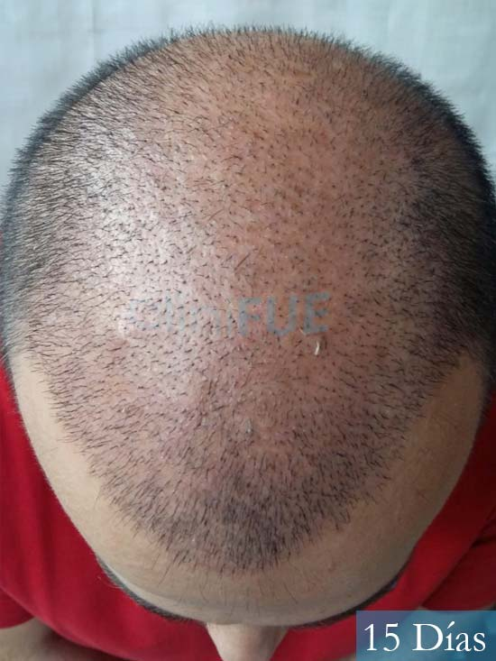 Javier-38-Guadalajara-trasplante-capilar-turquia 15 dias 3