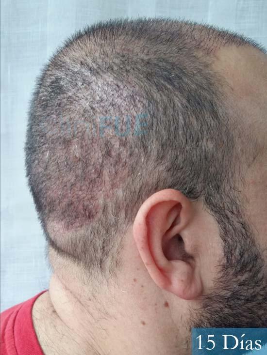 Javier-38-Guadalajara-trasplante-capilar-turquia 15 dias 4