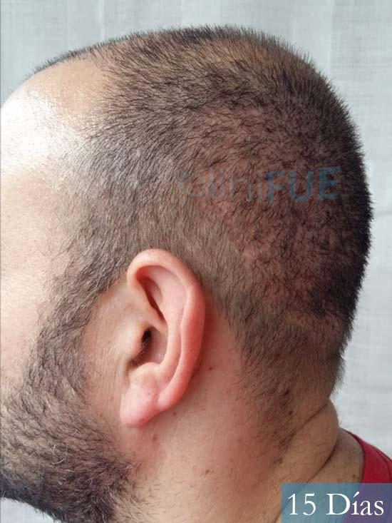Javier-38-Guadalajara-trasplante-capilar-turquia 15 dias 5