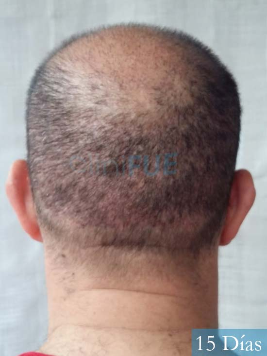 Javier-38-Guadalajara-trasplante-capilar-turquia 15 dias 6
