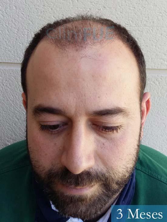 Javier-38-Guadalajara-trasplante-capilar-turquia 3 meses