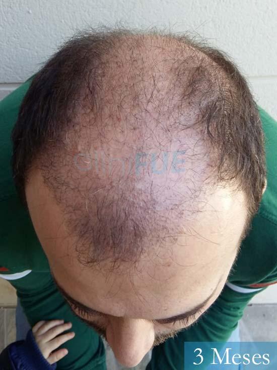 Javier-38-Guadalajara-trasplante-capilar-turquia 3 meses 2
