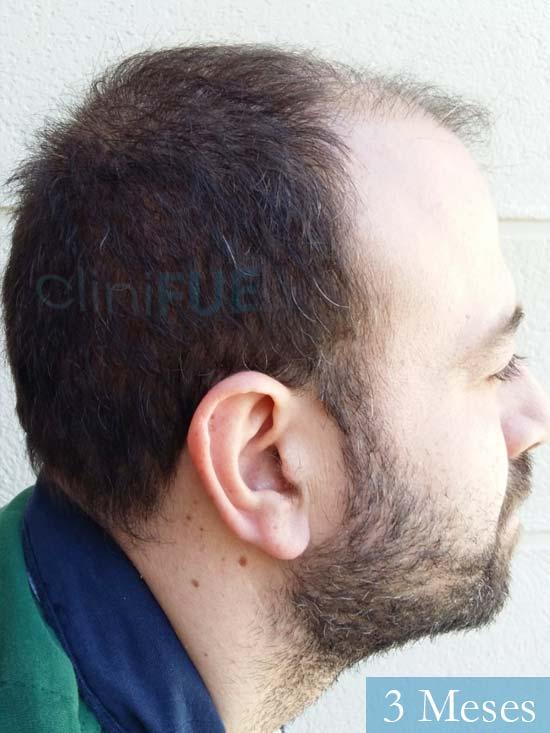 Javier-38-Guadalajara-trasplante-capilar-turquia 3 meses 3