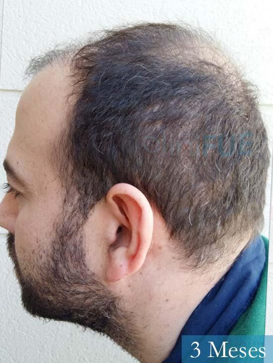 Javier-38-Guadalajara-trasplante-capilar-turquia 3 meses 4