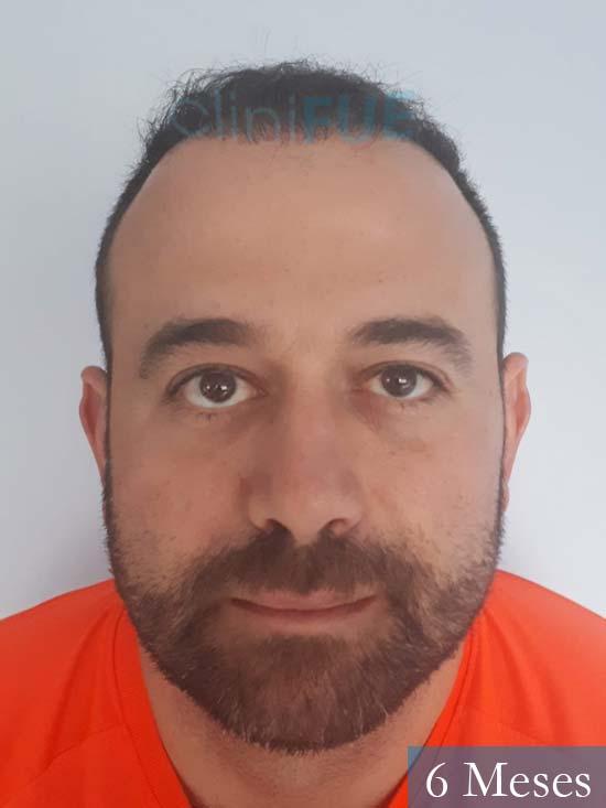 Javier-38-Guadalajara-trasplante-capilar-turquia 6 meses