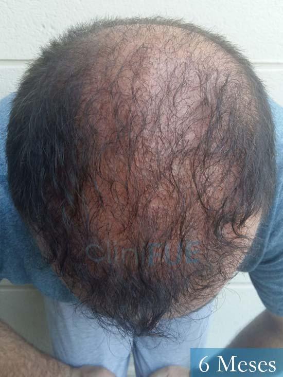Javier-38-Guadalajara-trasplante-capilar-turquia 6 meses 2