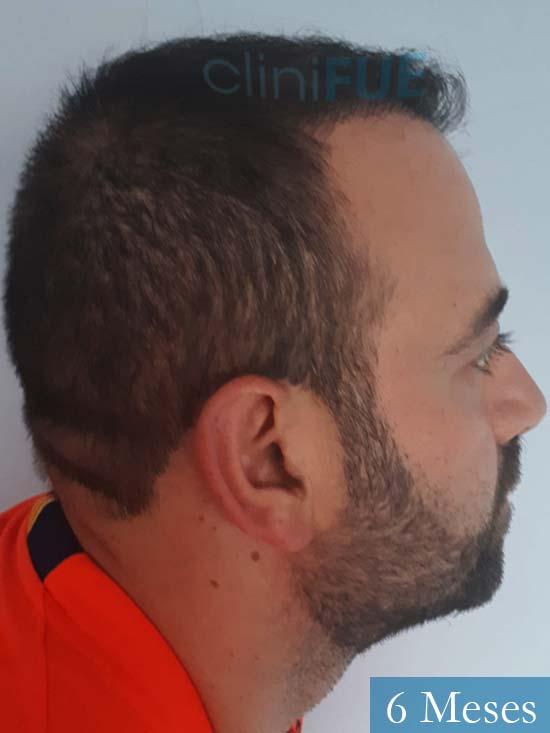 Javier-38-Guadalajara-trasplante-capilar-turquia 6 meses 3