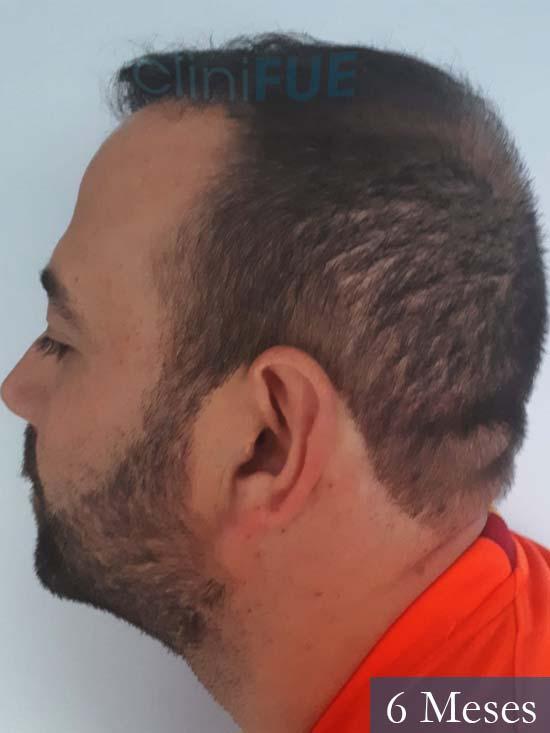 Javier-38-Guadalajara-trasplante-capilar-turquia 6 meses 4