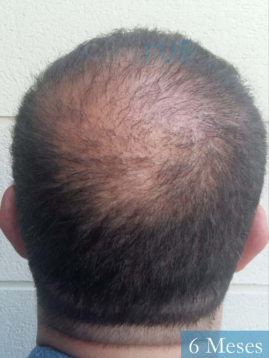 Javier-38-Guadalajara-trasplante-capilar-turquia 6 meses 5