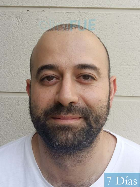 Javier-38-Guadalajara-trasplante-capilar-turquia-7 dias