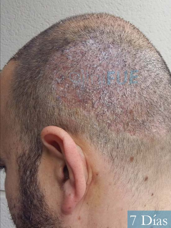 Javier-38-Guadalajara-trasplante-capilar-turquia-7 dias 4