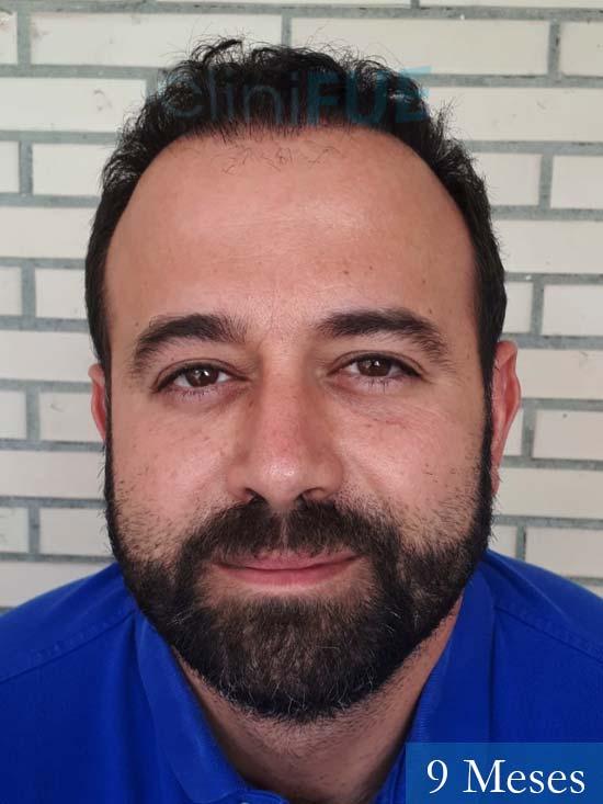 Javier-38-Guadalajara-trasplante-capilar-turquia 9 meses