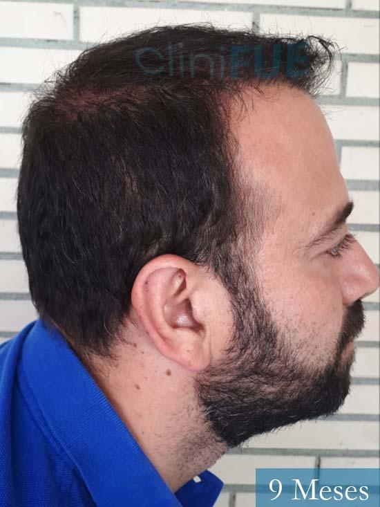 Javier-38-Guadalajara-trasplante-capilar-turquia 9 meses 4