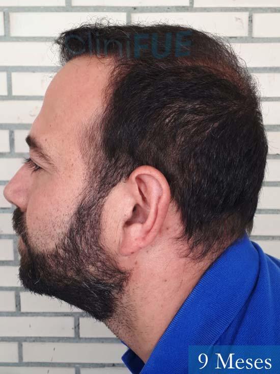 Javier-38-Guadalajara-trasplante-capilar-turquia 9 meses 5
