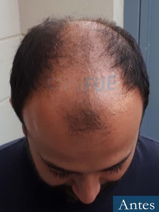 Javier-38-Guadalajara-trasplante-capilar-turquia-antes-2